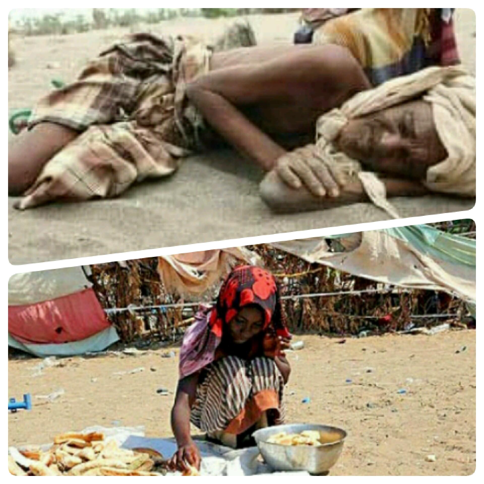 الأمم المتحدة : 9 ملايين يمني تضرروا من نقص التمويل الغذائي
